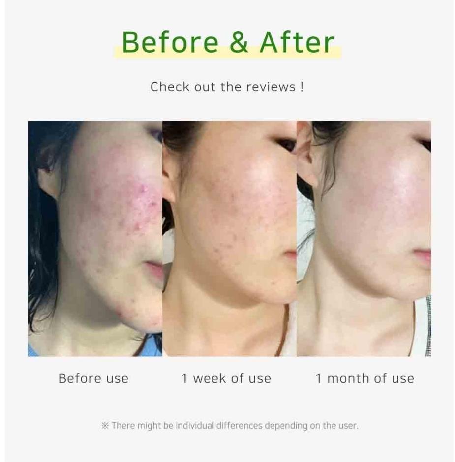 Akne hud behandling i Stockholm