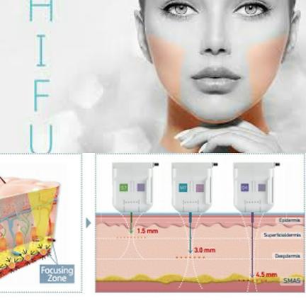 3D hifu behandling, en stark kollagenboost.