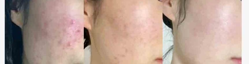 Akne behandling och hudvård.