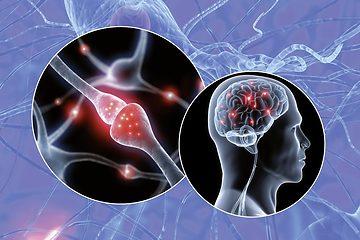 Life Kinetik - funktionell hjärnträning