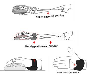 DuoPad motverkar musarm – följer armens rörelser – ger avlastning för handledens karpaltunnel.