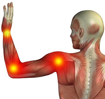 Musarm ger värk i handled, armbåge, axlar & nacke. DuoPad är ett skydd och stöd som hjälper.