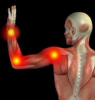Musarm ger värk i handled, armbåge, axlar & nacke. DuoPad är ett skydd och stöd som hjälper. Gaming