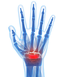 Carpal tunnel syndrome is a medical condition that is caused by the compression of the median nerve as it travels through the wrist at the carpal tunnel.