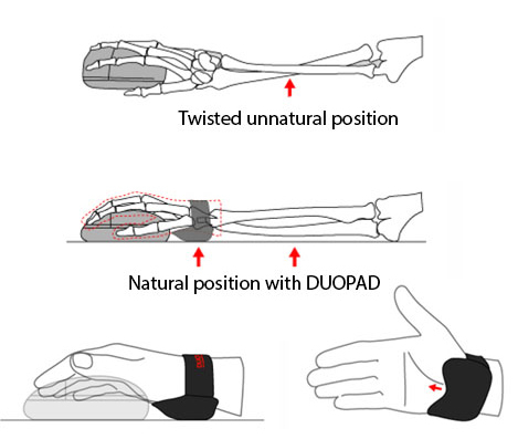 The clever under wrist placement allows for relief of the wrist's very sensitive carpal tunnel.